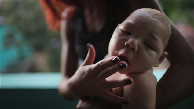 L'une des conséquences du virus est notamment, sur les nouveaux-nés, des cas de microcéphalies ©Mario Tama / Getty Images