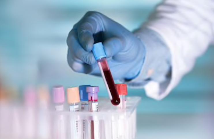 Covid-2019: Un médicament cubain parmi les solutions de traitement du Coronavirus en Chine