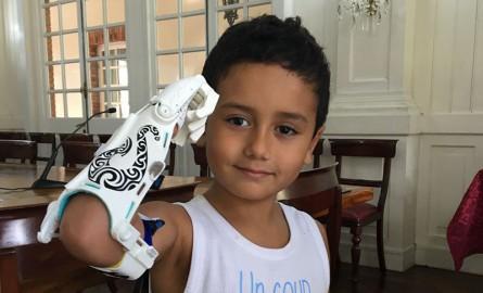 Une association calédonienne offre une prothèse 3D à un enfant polynésien